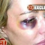 taylor_armstrong_abuse_photos